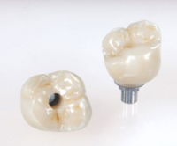 Bruxzir Implant Zirconia Crown