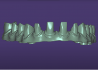 Hybrid implant bridge